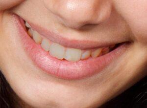 tand vrouw voor