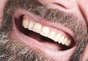 tanden na